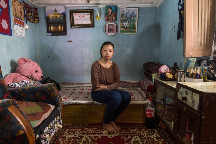 Sangita Magar bears the scars of an acid attack that took place three years ago. She was a plaintiff in a public interest case to change Nepal's law on acid and burn violence.