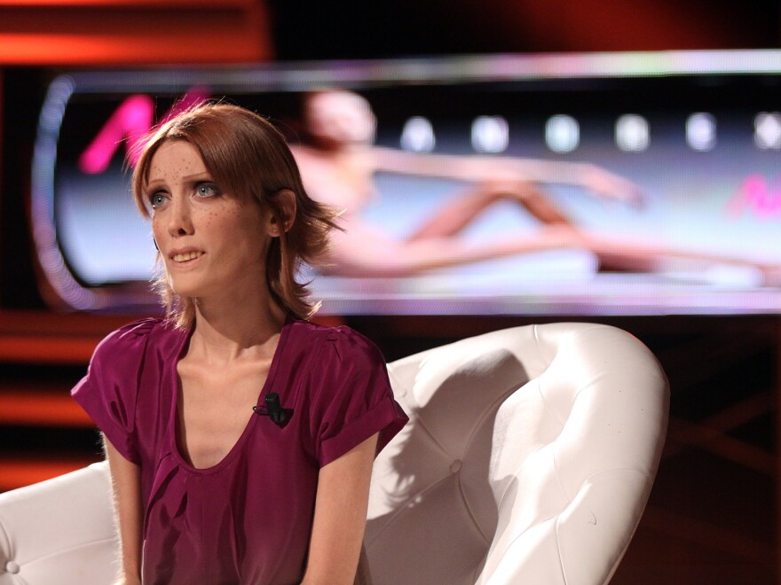 Isabelle Caro advocated for changes in the modeling industry to reduce the risk of anorexia. She died of the disease in 2010 at age 28.