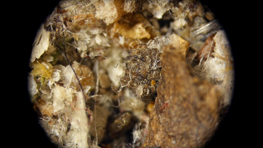 This Storage Mite is smaller than a grain of sand.