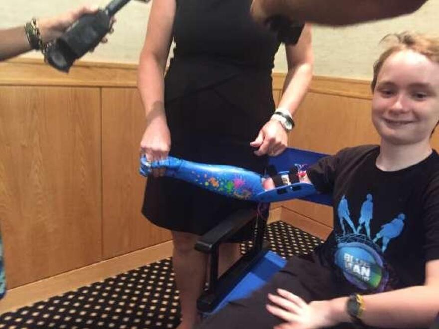 Wyatt Falardeau got a Blue Man Group bionic arm from Limbitless Solutions, a UCF nonprofit.