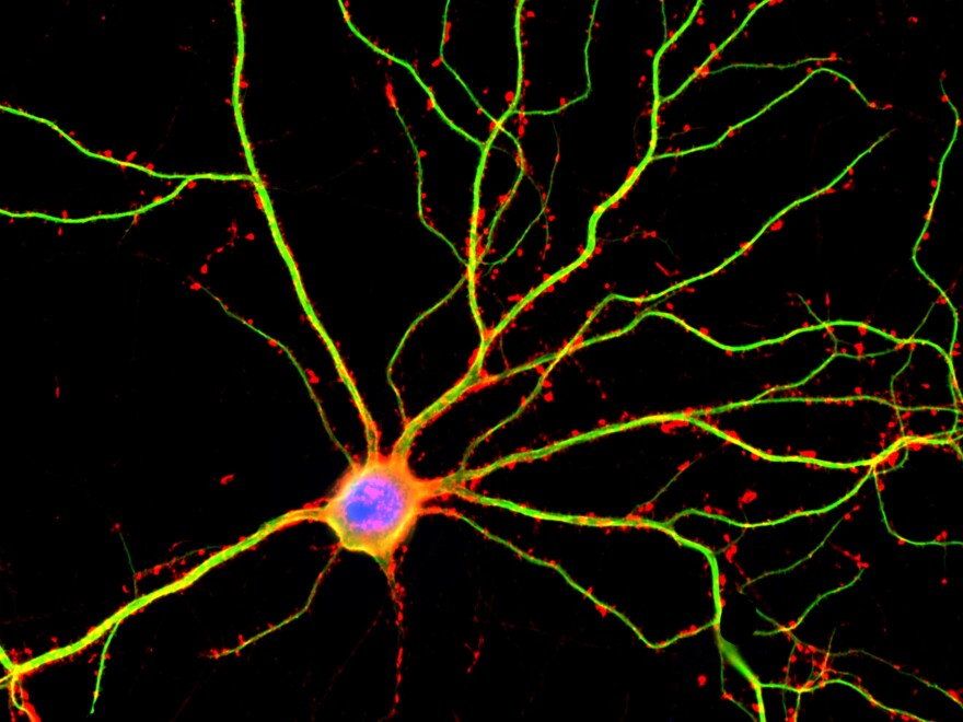 A hippocampal neuron seen in culture. Dendrites are green, dendritic spines are red and DNA is blue.