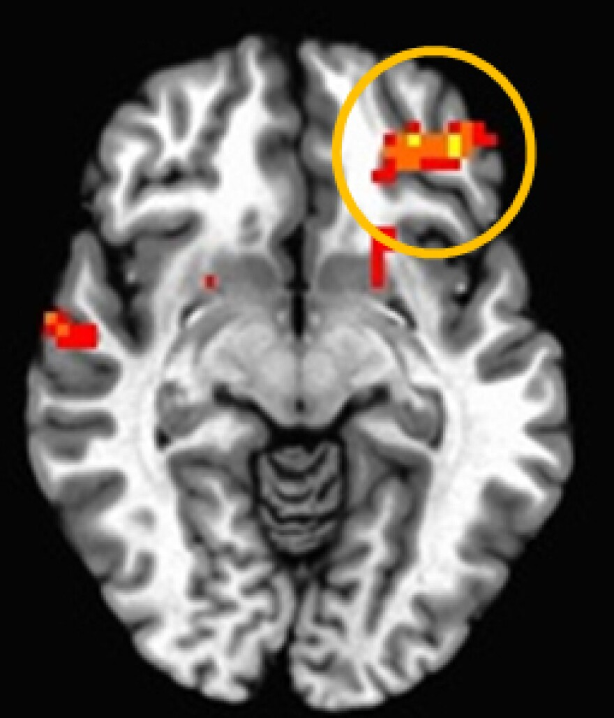 When researchers at Weill Cornell Medical College scanned teenage brains, they found that the area that regulates emotional responses has to work harder to keep impulses in check.