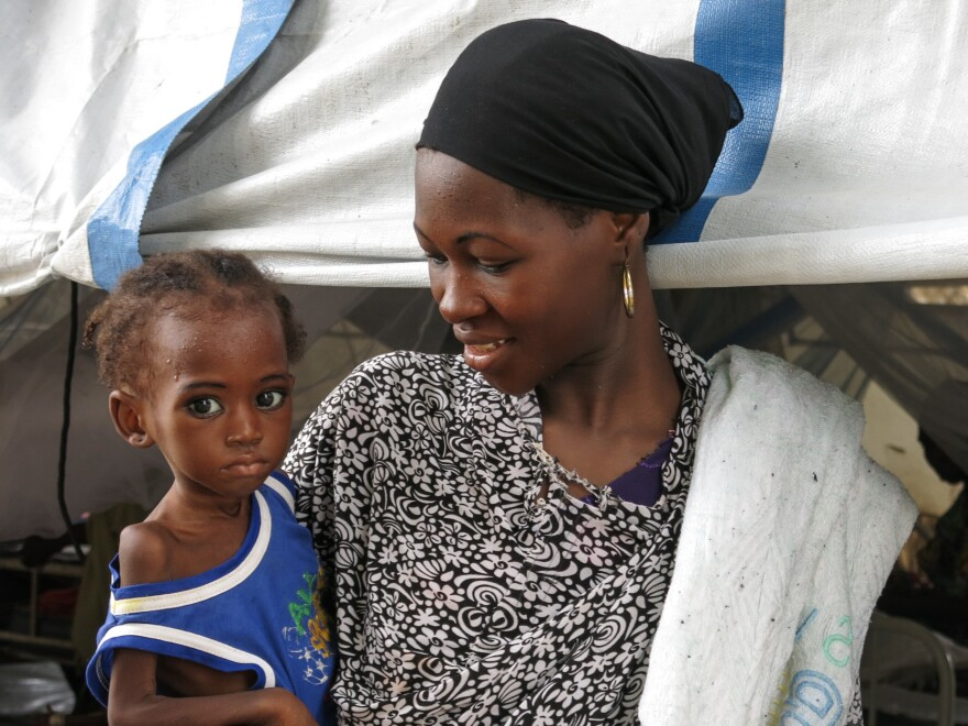 Two-year-old Sakina is suffering from acute malnutrition. After weeks of intensive feeding therapy at a Doctors Without Borders center, she's heading back home, amid concern whether there'll be enough food to keep her from returning to the unit.