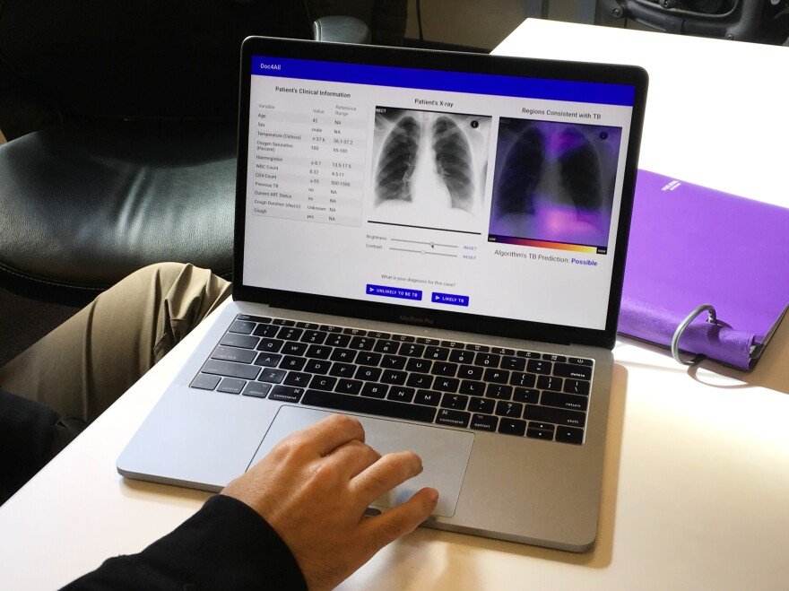 The laptop displays clinical information, a chest X-ray and a heat map that indicates where the algorithm is focusing its attention.