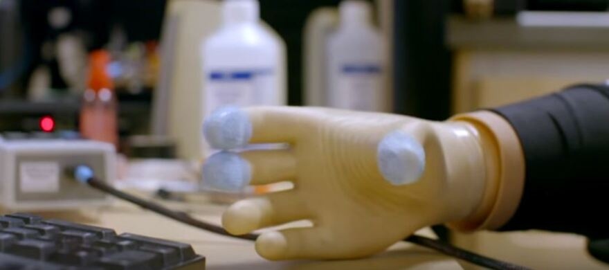 a photo of a prosthetic hand with touch receptors