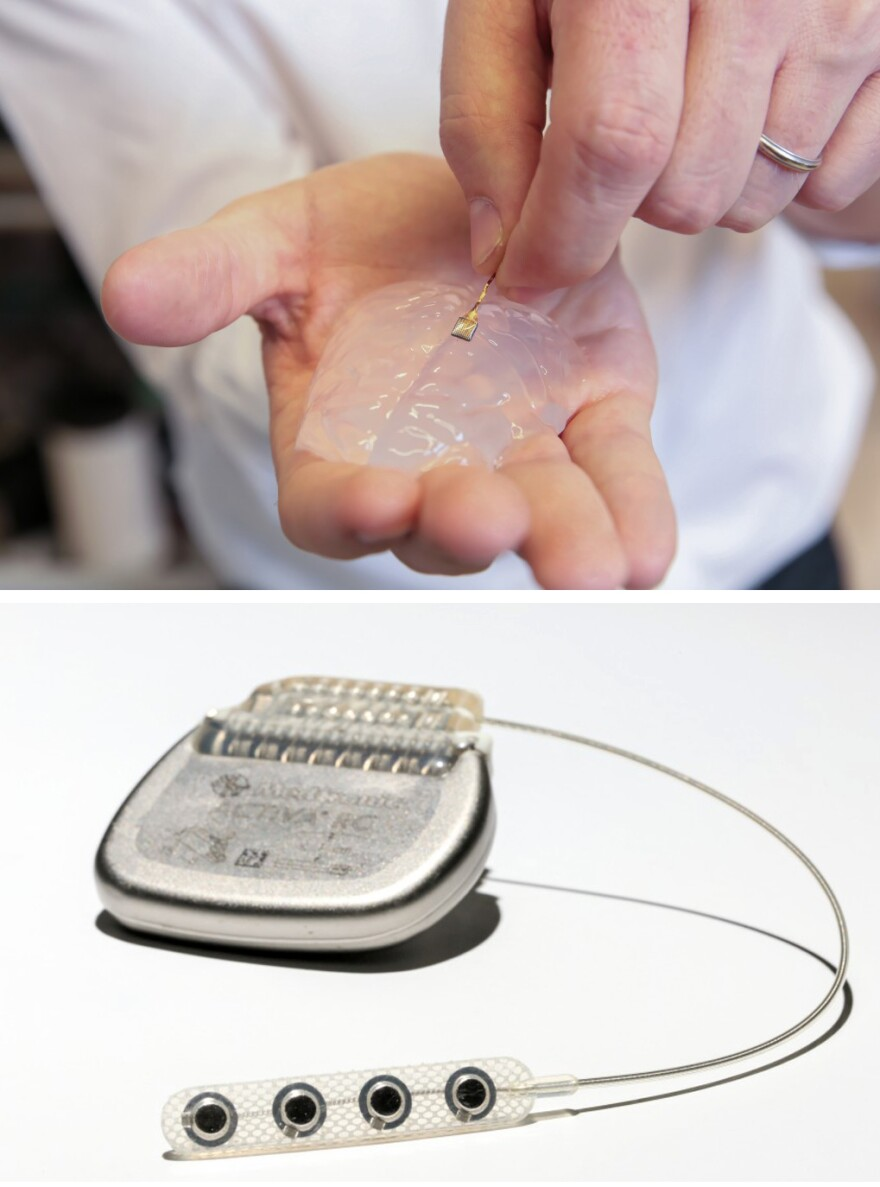 Two devices were implanted into the monkeys' bodies: (above) a tiny electrode array in the brain and another (below) in the lower spine to signal leg muscles when to move.