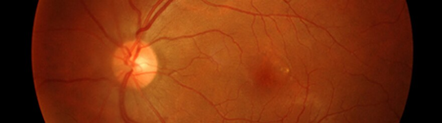 Photo of Eye for Gene Therapy