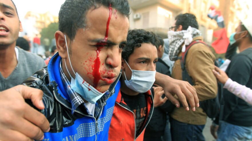An injured Egyptian protester is helped away during clashes with security forces Monday in Cairo's Tahrir Square.
