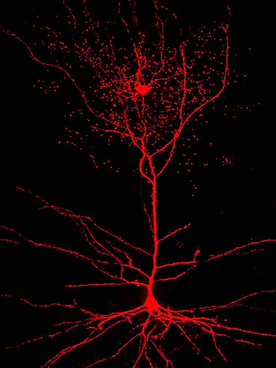 An image of a rosehip neuron (top) and a connecting pyramidal cell (bottom).