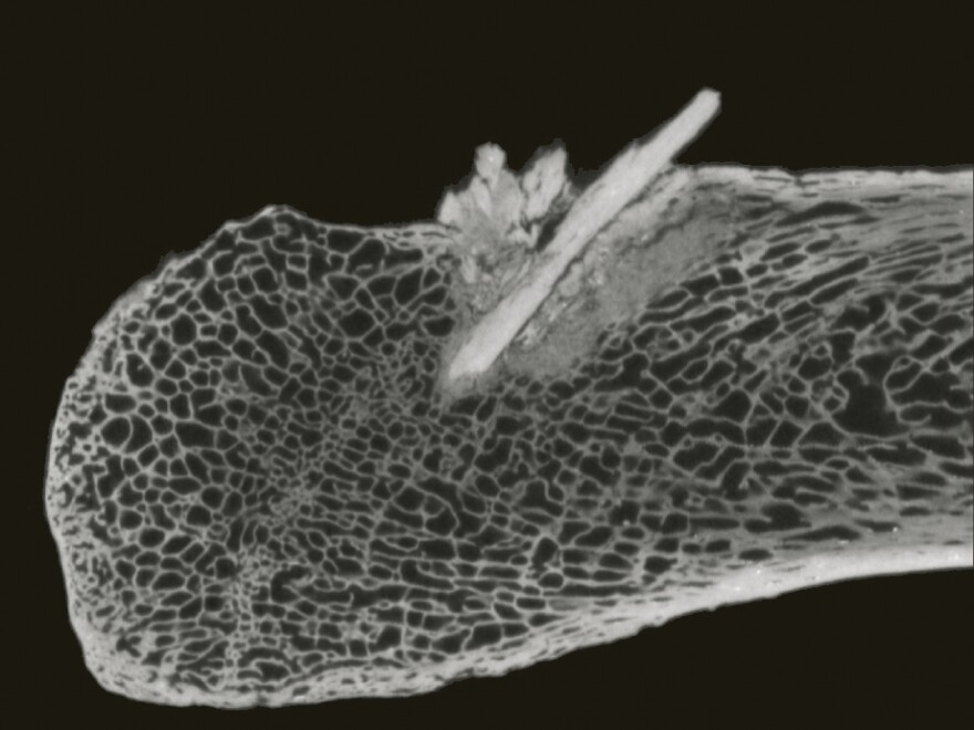 <p>This CT scan image shows a section of mastodon rib where researchers found a spear point lodged in the bone. The spear would have passed through more than 10 inches of hide, tissue and muscle.</p>