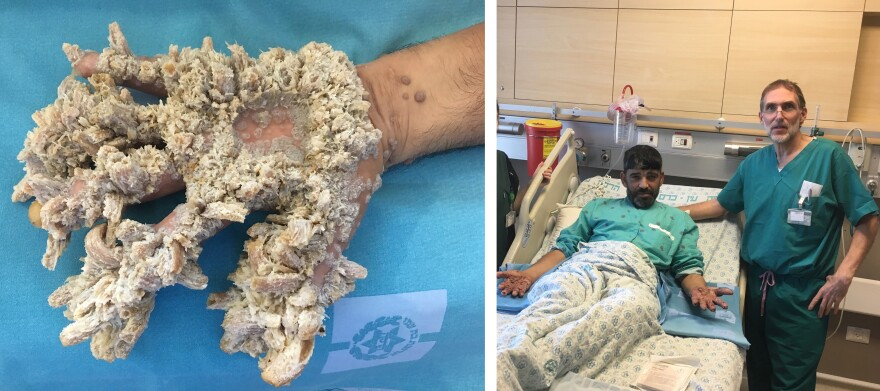 "The growths on Mahmoud Taluli's hands were the result of a severe case of a rare condition called epidermodysplasia verruciformis — sometimes referred to as ""tree man"" syndrome because the tumors can resemble wood or bark. At right: Taluli after his operation."