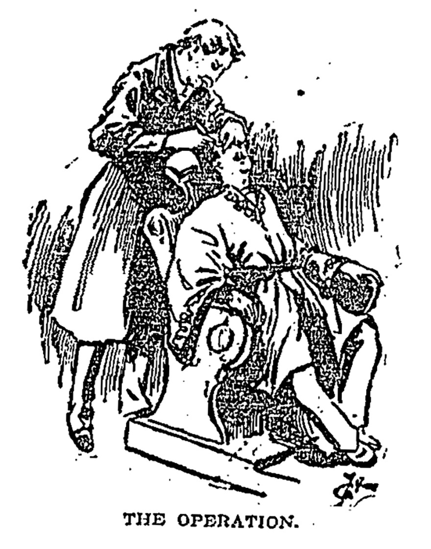 This illustration appeared in a February 1895 <em>Los Angeles Times</em> story about eyelid surgery in Japan.