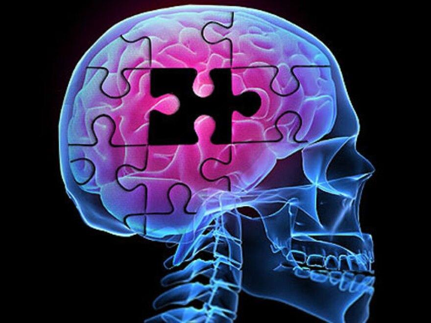 alzheimers-brainpuzzle-512.jpg