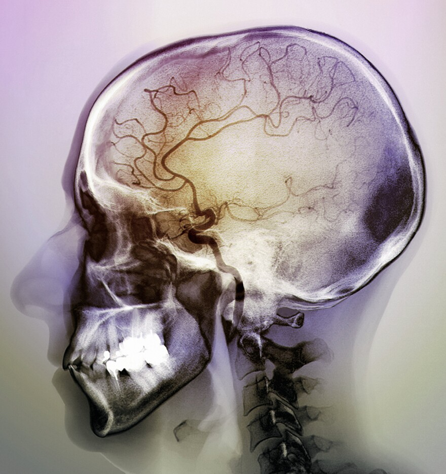 During an ischemic stroke, blocked arteries cause a lack of blood flow to parts of the brain, seen here in a 48-year-old patient. There are fewer blood vessels visible in the center of the brain.