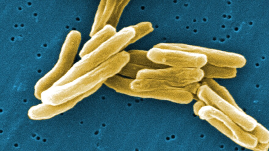 An image of<em> Mycobacterium tuberculosis</em> bacteria captured with an electron microscope.