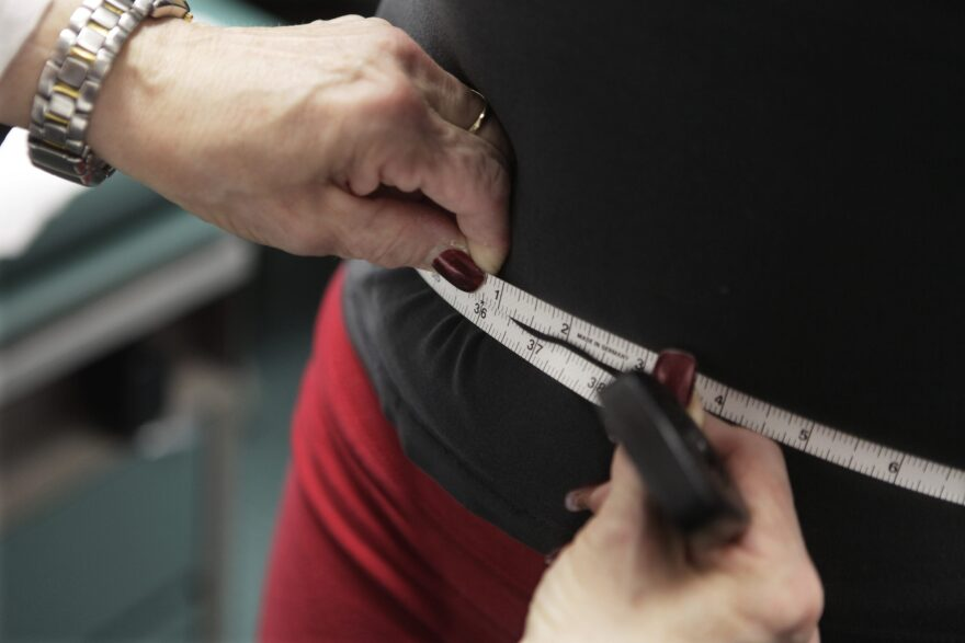 A new study published in The Clinical Infectious Diseases Journal finds obesity is a risk factor in COVID-19 hospital admissions for people under 60. (M. Spencer Green/AP)