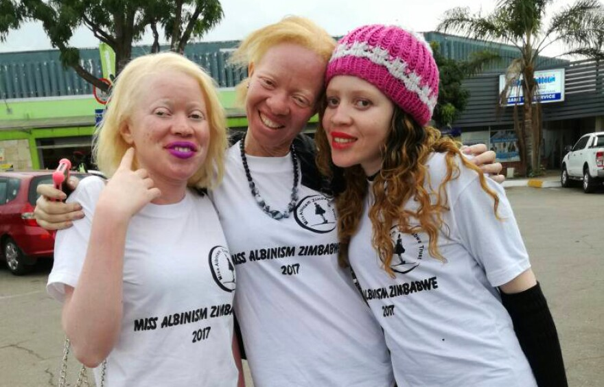 "The ""Miss Albinism"" pageant was rescheduled due to the political uncertainty in Zimbabwe. From left: contestant Cindy Zikwature, Brenda Mudzimu, the founder of the pageant, and contestant Monalisa Manyati."
