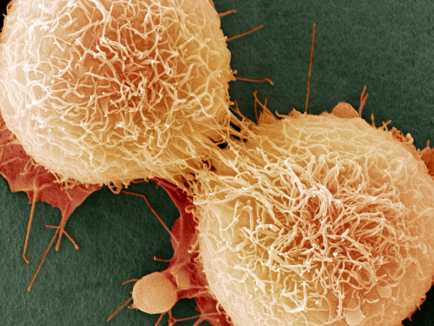 Nearly two-thirds of cell mutations that cause cancer are caused by random error, a study found.