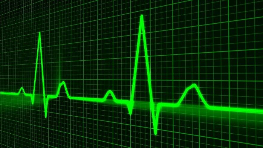 Electronic pulse