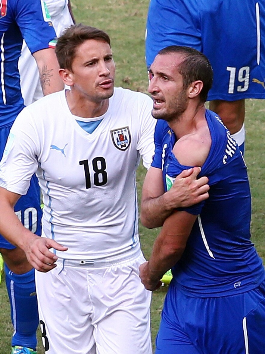Giorgio Chiellini of Italy pulls down his shirt to show a wound after clashing with Luis Suarez of Uruguay (not pictured). Looking on is Gaston Ramirez of Uruguay. The incident, in which Suarez apparently bit Chiellini, resulted in more than 100 people winning a bet.