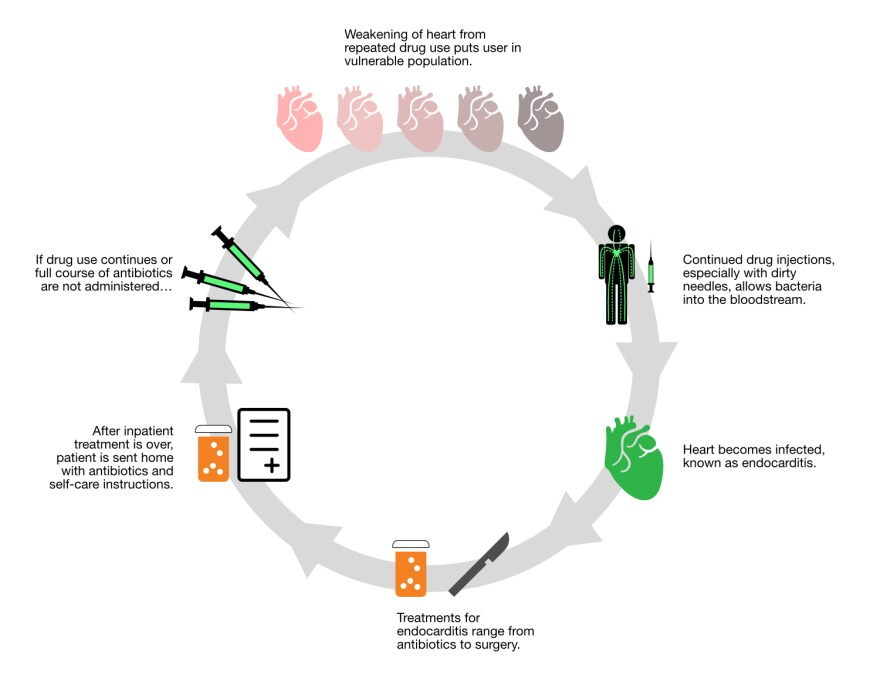 endocarditis-cycle.jpg