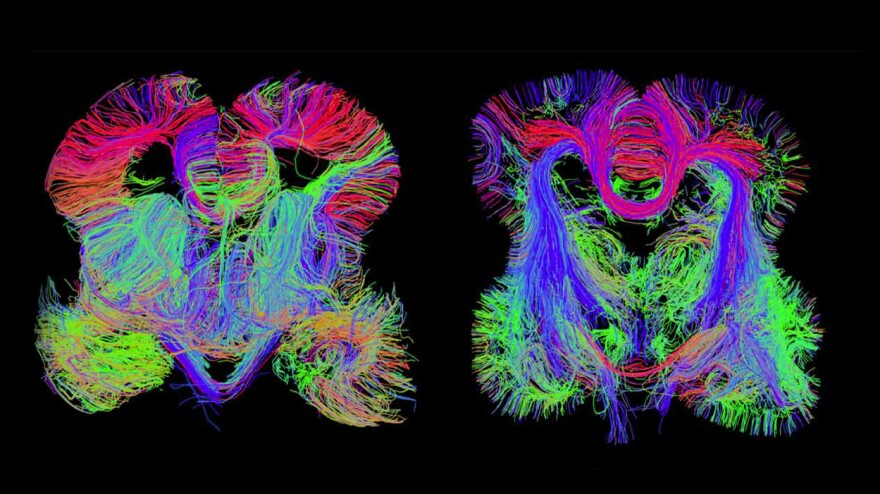 Images of the developing fetal brain show connections among brain regions.