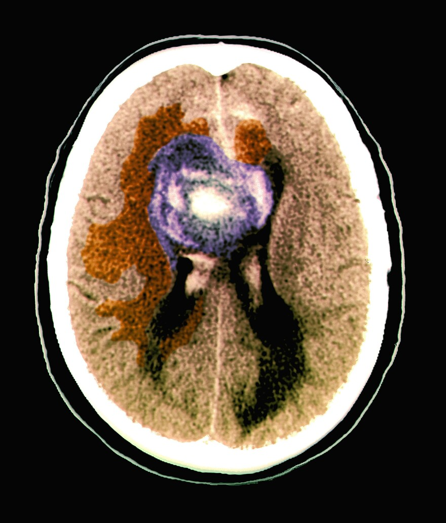 A computerized tomography scan shows part of the brain of a 59-year-old patient with a malignant glioblastoma brain tumor. Researchers say certain brain cancers tap electrical signals from healthy cells to fuel their growth.