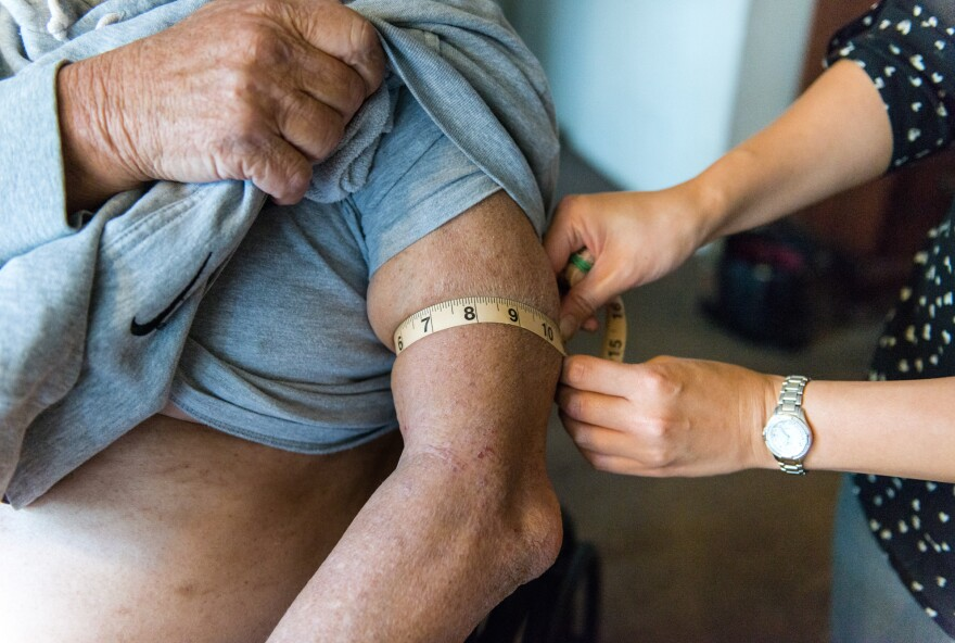 At Gerald Chinchar's home in San Diego, Calif., Nurse Sheri Juan (right) checks his arm for edema that might be a sign that his congestive heart failure is getting worse.