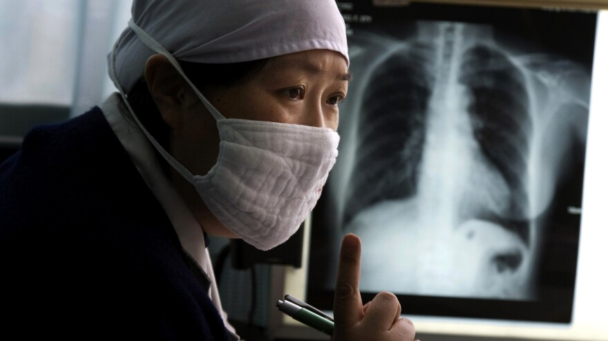 Gao Weiwei, a doctor of the Beijing Chest Hospital which specializes in the treatment of tuberculosis, talks to a patient suspected to have tuberculosis at the hospital in Tongzhou, near Beijing, March 27, 2009.