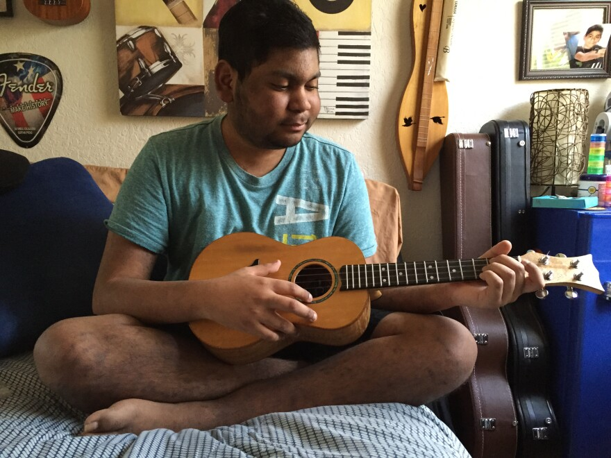Brendon Santana started playing ukulele after a bone marrow transplant.