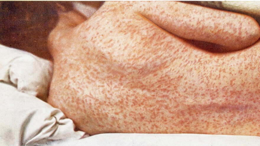 A woman with measles is pictured in this file photo.