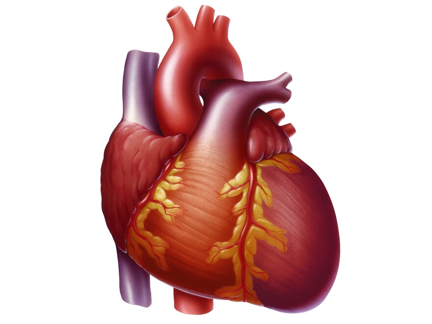 Heart with congestive heart failure showing an enlarged left ventricle.