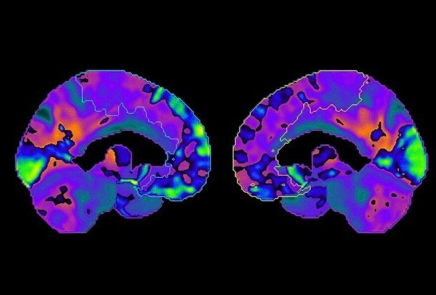 Dr. Jame Abraham used positron emission tomography, or PET, scans to understand differences in brain metabolism before and after chemotherapy.
