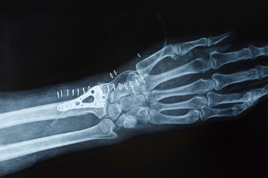 A man who breaks a wrist after age 50 is more likely to die prematurely than a woman with the same injury.