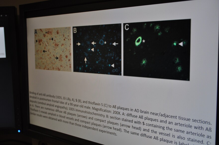 A slide shows three images of the same section of brain from a deceased patient who had Alzheimer's disease. On the right, the slide is imaged using existing PET tracers. In the middle, the slide is imaged using fluselemanyl. On the left is an image that