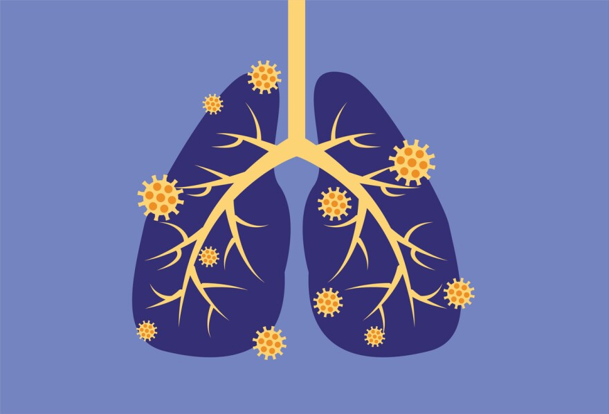A graphic of a virus infecting lungs.