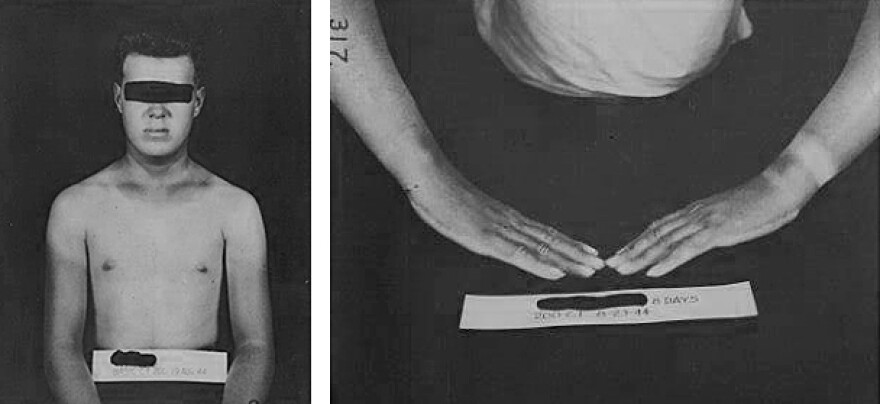Historic images from the Naval Research Laboratory depict results of a test subject who was exposed to mustard gas.