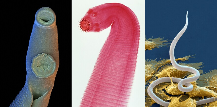 Three parasitic worms (from left): male blood fluke, which can range in size from 0.2 inches to 4 inches; tapeworm, which can grow up to 30 feet in length; and microfilaria. The images were color enhanced.