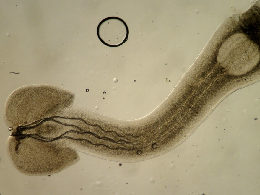 Parasites play crucial roles in keeping ecosystems healthy, as does this larval trypanorhynch tapeworm, which infects fish.