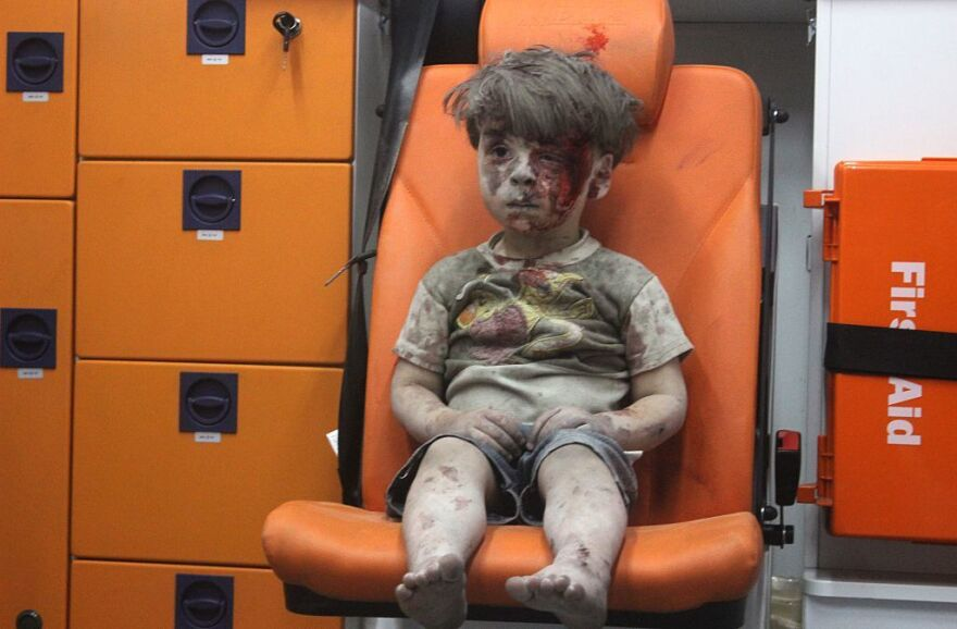 Wounded 5-year-old Omran Daqneesh sits alone in the back of the ambulance after he was injured during airstrikes targeting Aleppo, Syria, on Wednesday.