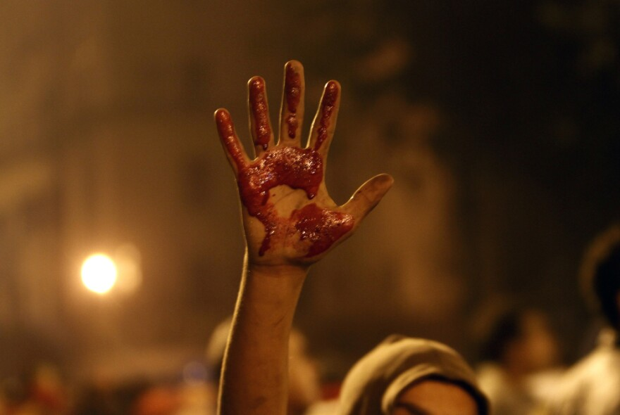 An Egyptian protester shows his palm stained with blood from a wounded demonstrator during clashes with security forces in Cairo on Friday.