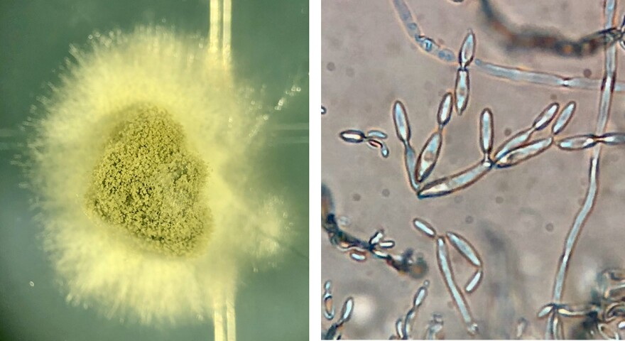 Cladosporium colonies emerge from a Twinkie sample (left) and viewed at 20X (right) using a compound microscope.