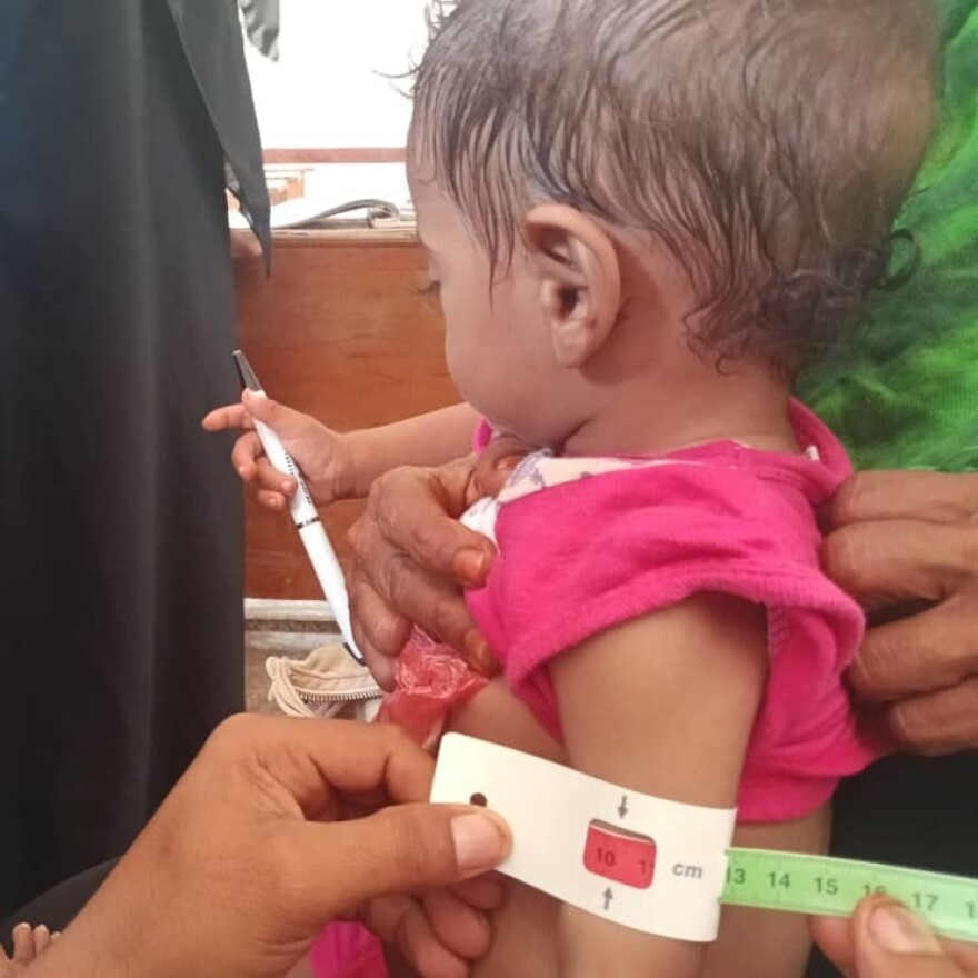 The circumference of an 18-month-old girl's arm is measured at nearly 4 inches, indicating severe acute malnutrition, at an International Medical Corps' outpatient nutrition clinic in Al Mukha, Taiz governate, Yemen. The measuring device is called a MUAC tape (middle upper arm circumference).