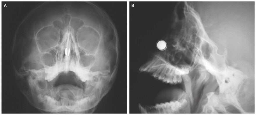 An 11-year-old boy put small magnets up both nostrils, then couldn't figure out how to get them out. These X-rays tell the tale.