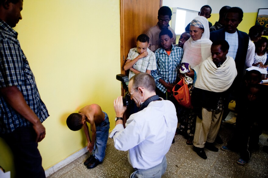 Dr. Rick Hodes examines Sisay Gudeta for the first time in 2013. The American doctor sees about 200 scoliosis patients each year at the only spine clinic in Addis Ababa, Ethiopia.