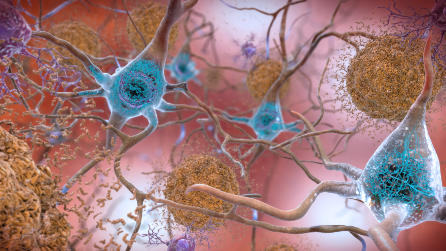 The Alzheimer's Association hopes to determine if lifestyle changes can delay brain changes that lead to cognitive decline.