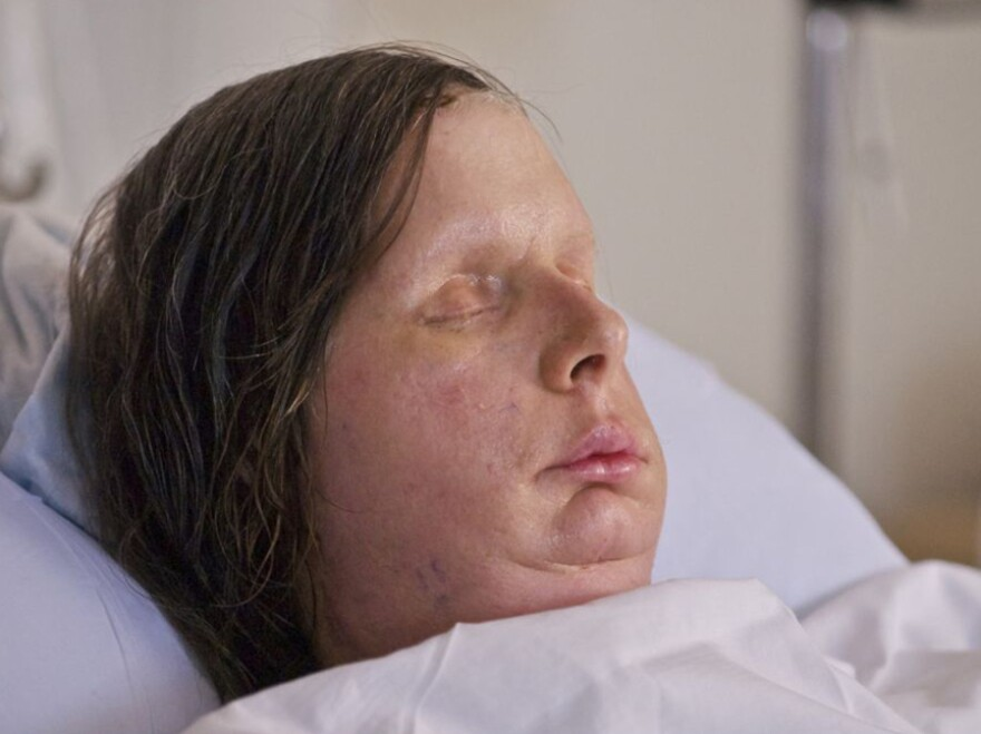 Charla Nash received a full-face transplant after she was mauled by a chimpanzee in 2009.