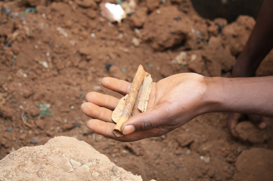 A man holds what appear to be bone fragments found at a mass grave.