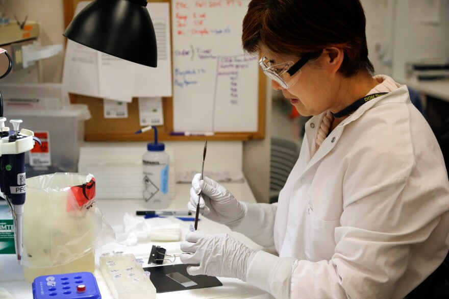 Microbiologist Mi Kang works to identify a strain of <em>E. coli</em> from a specimen in a lab at the Washington State Department of Health on Tuesday in Shoreline, Wash.