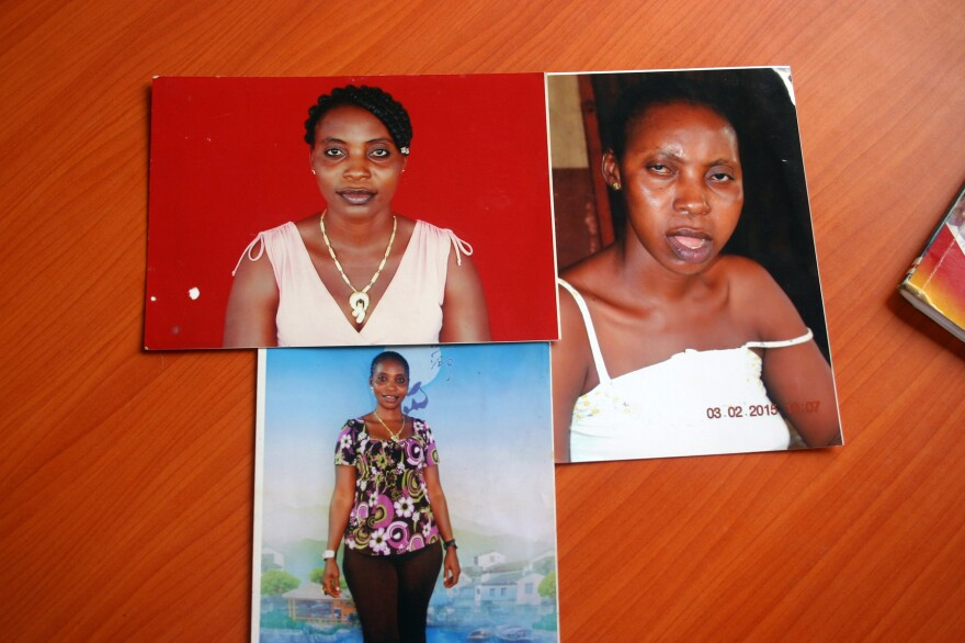 Jaimama Konneh is an Ebola survivor. The two photos on the left are before Ebola. The one on the right is from after. She has had significant swelling in her jaw and says at times she can't close her mouth or swallow. She has also suffered headaches and for a while had trouble seeing out of her right eye.